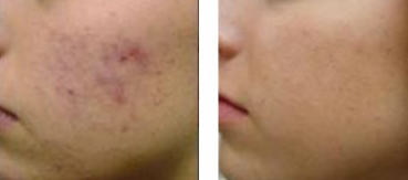 skin peel treatments before and after