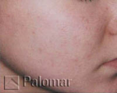 acne removal after