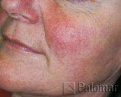 facial veign before