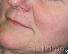 facial veins after
