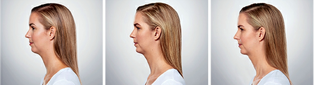 Kybella in Columbia / Irmo SC