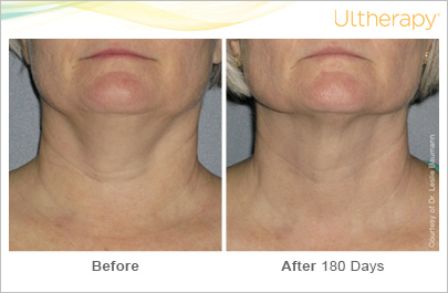 Before and after Ultherapy treatment